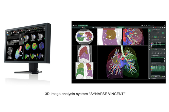 """[Photo]3D image analysis system """"SYNAPSE VINCENT"""""""