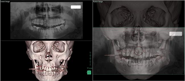 [imagem] Imagens 2D e 3D fundidas do crânio