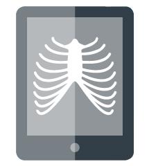 [imagem] Esboço digital do tablet com imagem de caixa torácica na tela