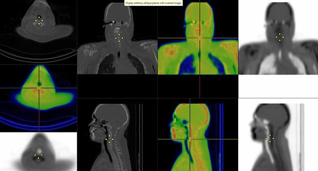 [imagem] Fusão de imagens PET-MR, PET-CT e SPECT-CT do corpo