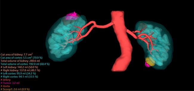[imagem] Imagem 3D com contraste de rins azuis e córtex renal vermelho