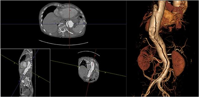 [imagem] Visualizador 3D de dados de TC, RM, MN e TP