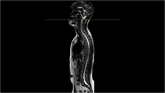 [imagem] Exame de imagem lateral do corpo e da coluna vertebral