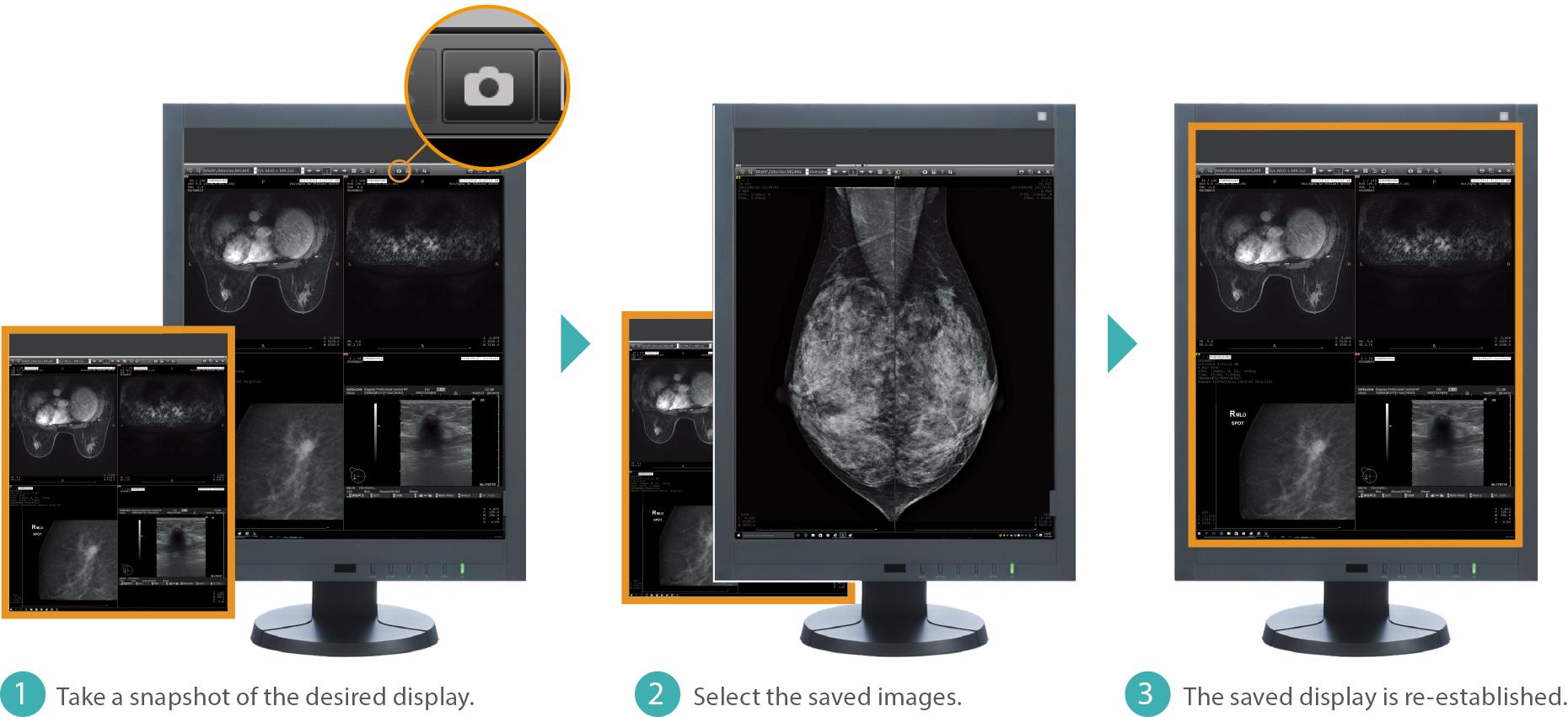 [imagem] Visualização em close-up da função Snapshot, que exibe condições, ordem e fator de escala de cada imagem