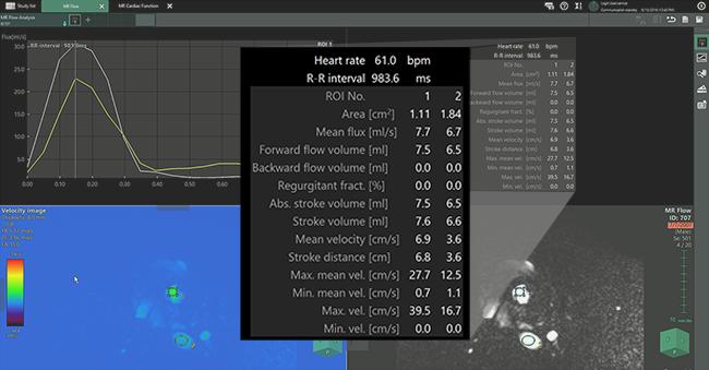 [imagem] Aplicativo de RM para análise de fluxo