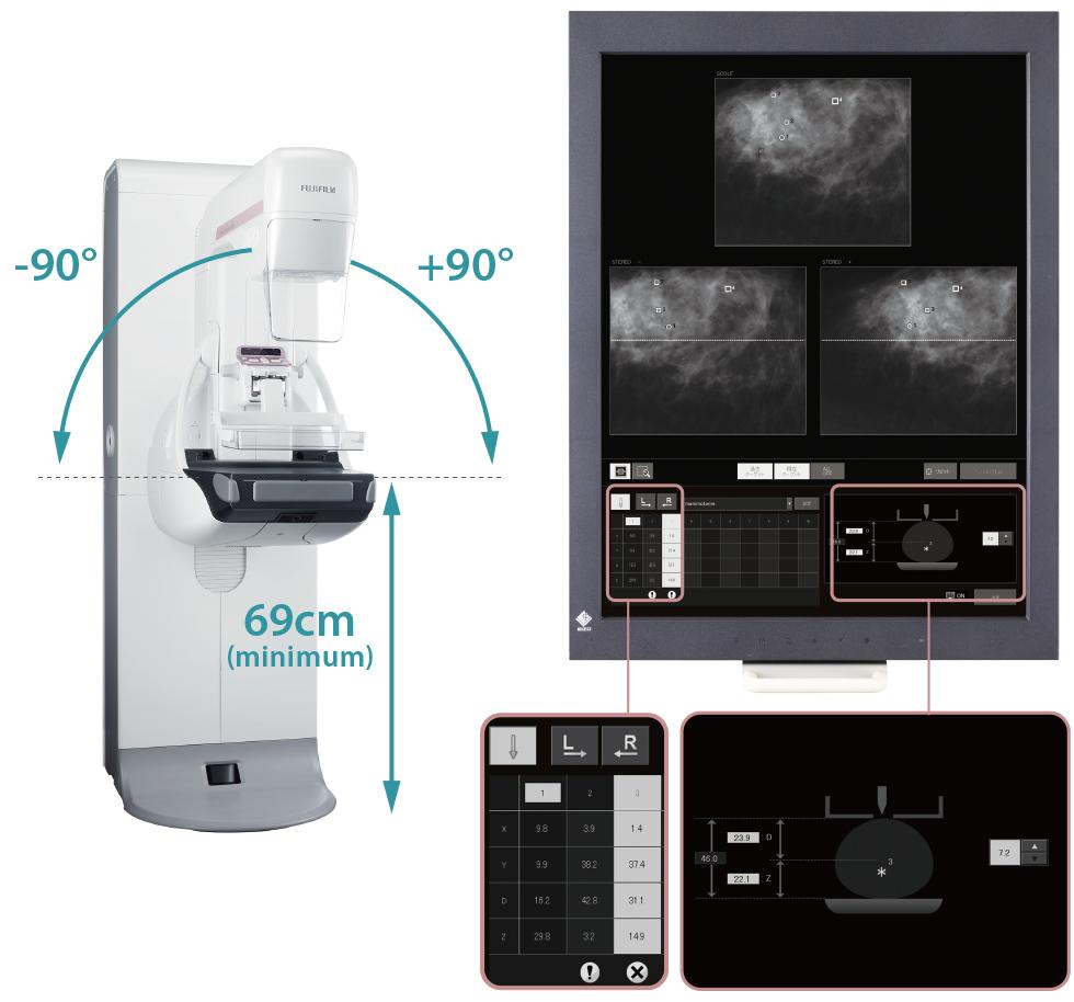 [foto] Visão frontal do posicionador de biópsia - solução de imagem de 50 μm e raios X de amostra
