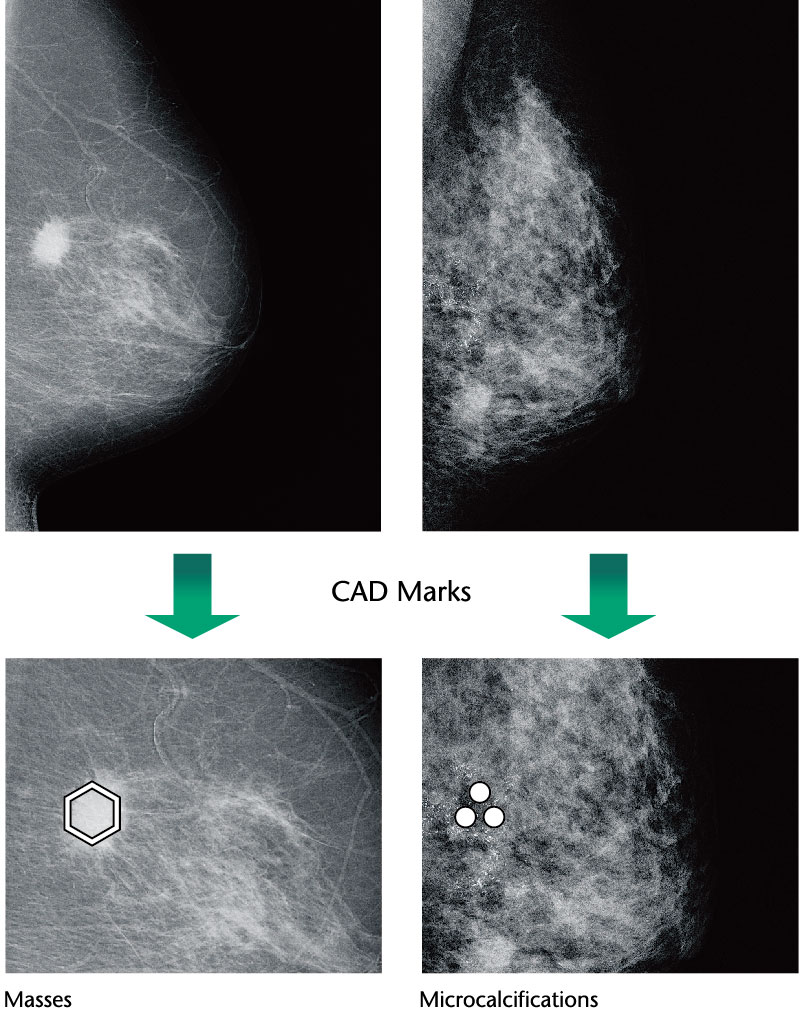 [photo] Mammography images of breast tissue showing masses versus calcifications using different CAD marks
