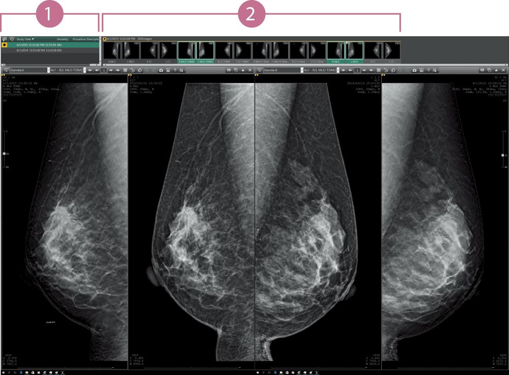 [imagem] Mamografia (2D/tomossíntese/comparações com imagens anteriores)