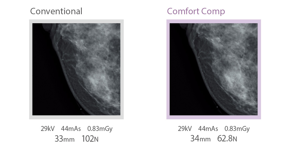 [imagem] Comparações lado a lado de raios X convencionais e Comfort Comp