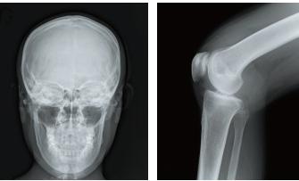 [imagem] Radiografias de crânio humano e articulação do joelho