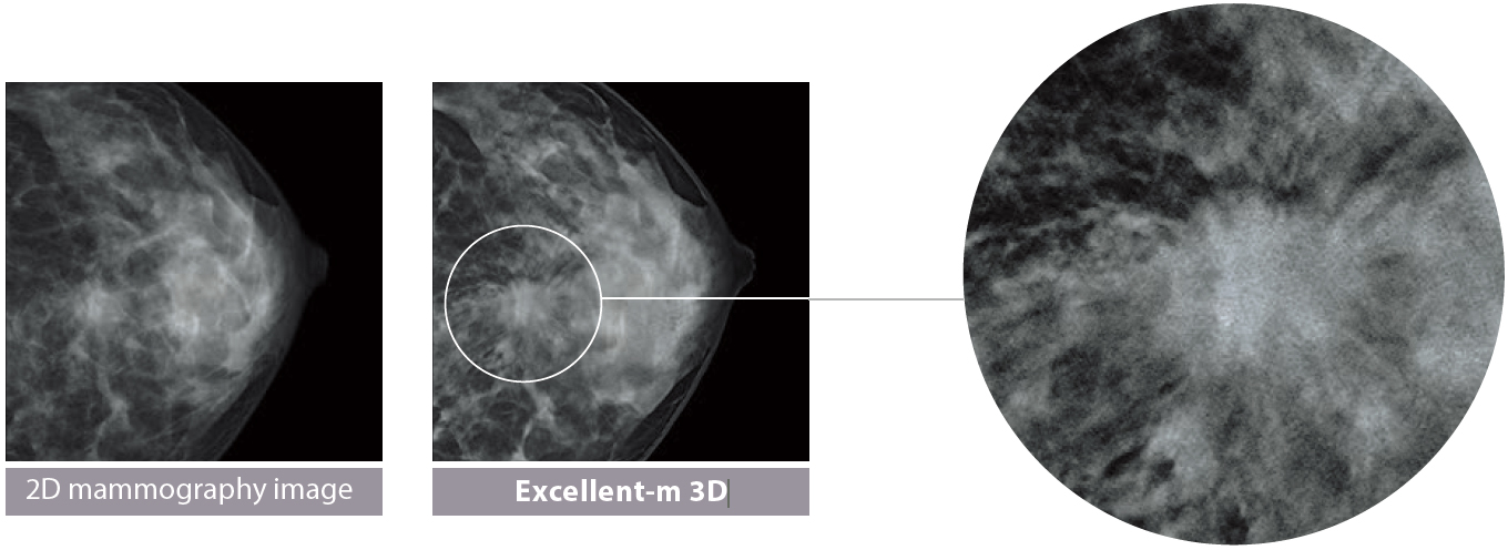 [photo] 2D mammography image of breast tissue compared to Excellent-m 3D image of breast