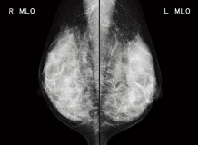 [photo] Mammography image of breast tissue