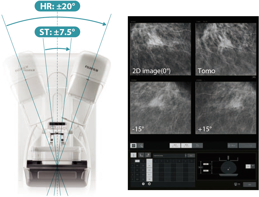 [foto] Biópsia de tomossíntese em simulação em tempo real com imagem 2D de amostra e resultados de raios X de tomossíntese