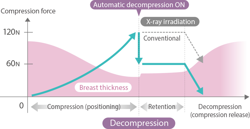 [gráfico] Controle de redução de compressão automática (Comfort Comp)