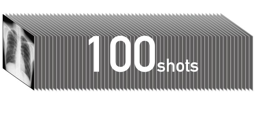[imagem] Imagens de raios X enfileiradas em uma linha horizontal