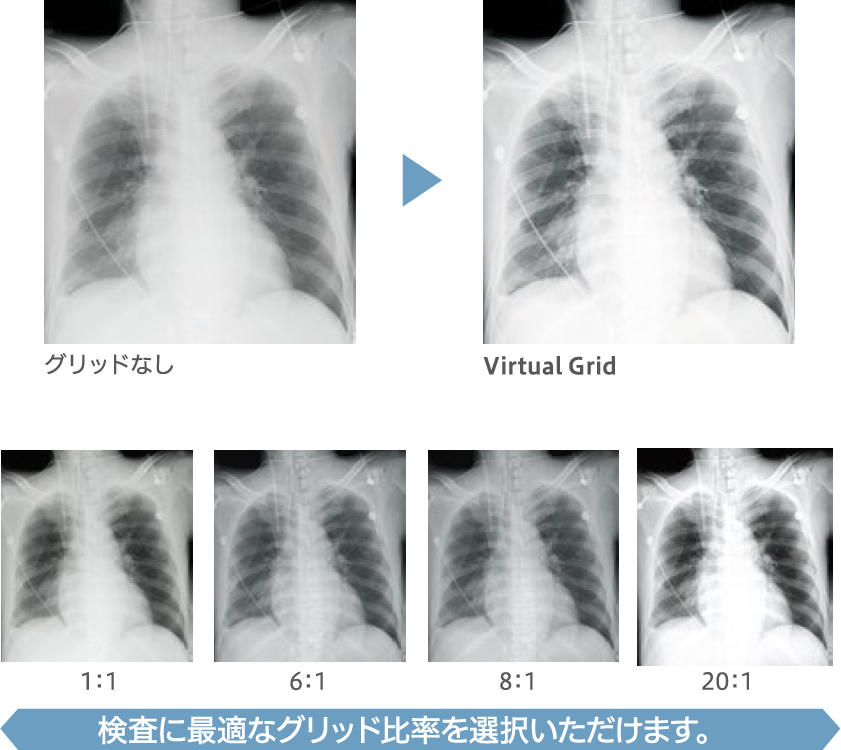 [image] x-ray comparisons with different ratios