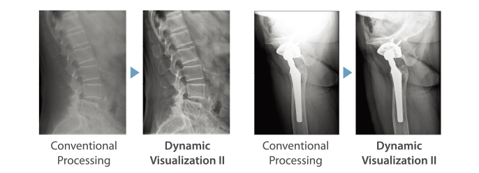 [image] 2 x-ray comparisons of Conventional Processing vs Dynamic Visualization II