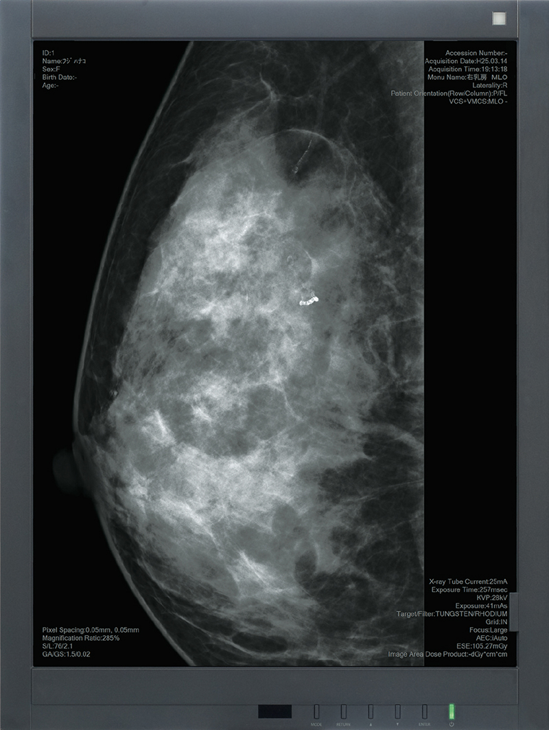 [image] Mammogram x-ray on a High definition second monitor