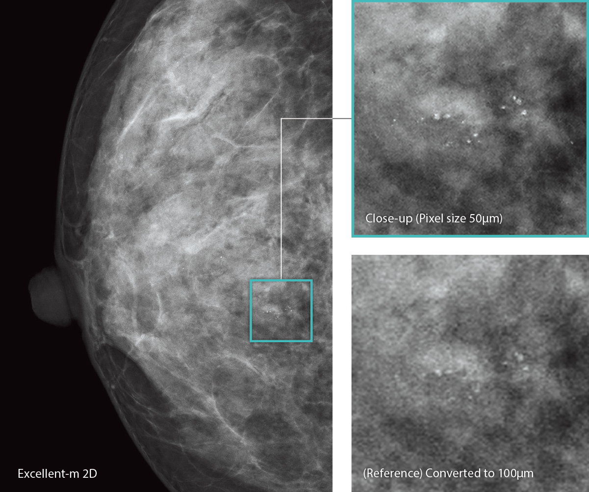 [photo] 3 grid high-resolution mammography images grid with close up and reference images