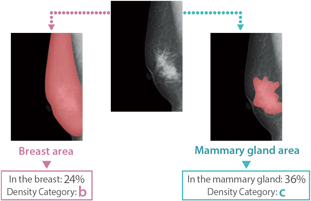 [image] Breast Density Measurement depicted with 3 mammogram x-rays