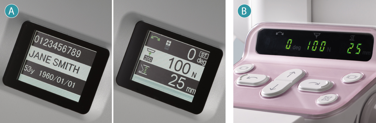 [image] A & B images showing LCD information screen and controls