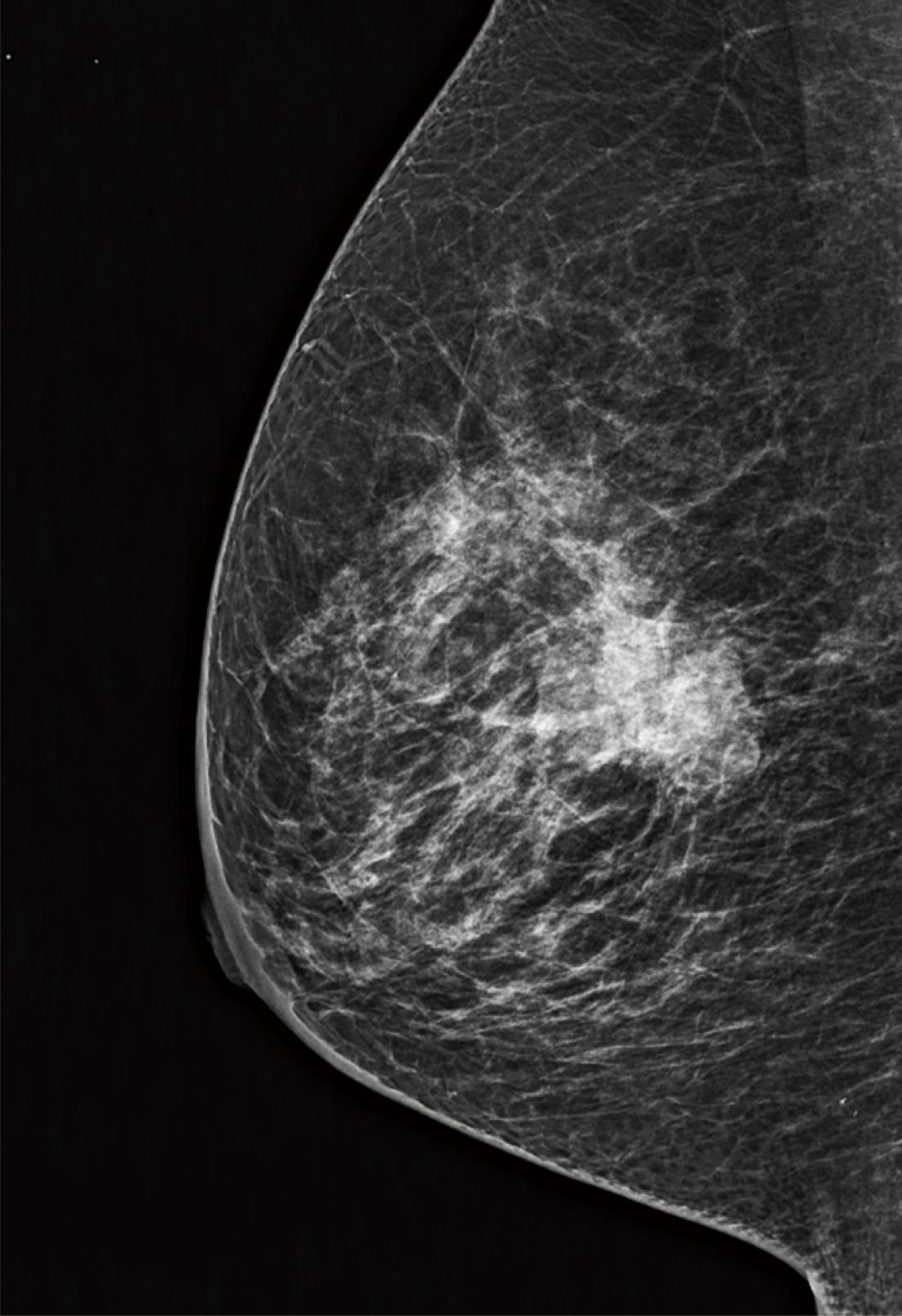 [image] Mammogram x-ray