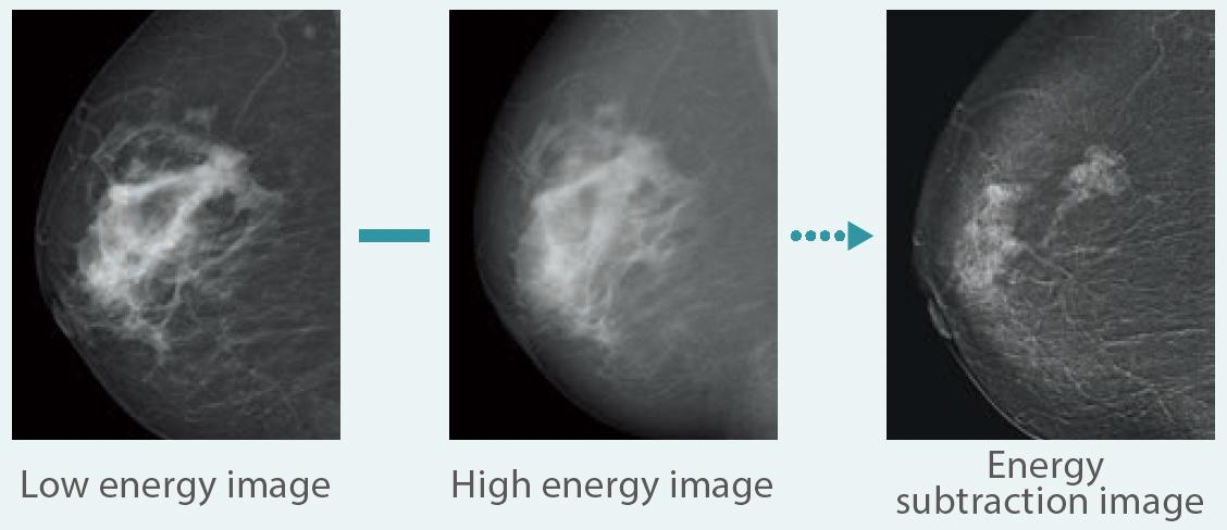 [image] Low energy image, High energy image, energy subtracting image mammogram x-rays comparison
