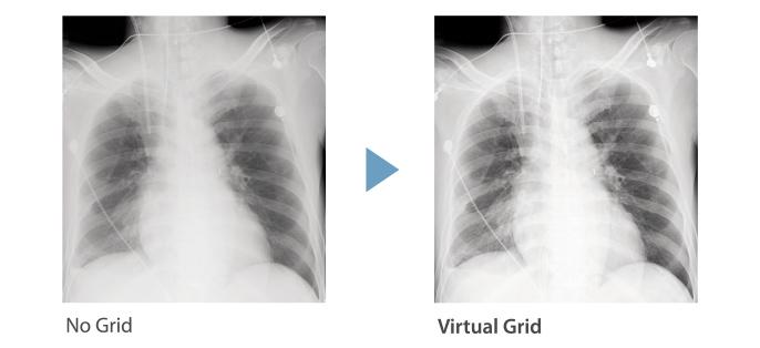 [image] No Grid vs Virtual Grid x-ray comparison