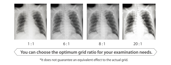 [image] 4 x-ray Grid comparisons 1:1, 6:1, 8:1, 20:1
