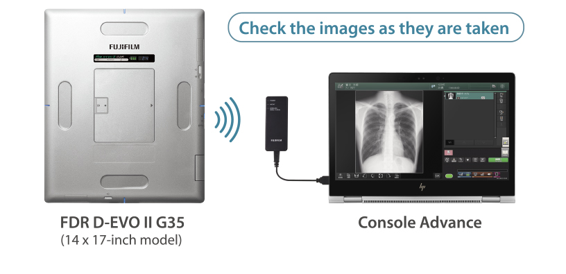 [photo] Silver FDR D-EVO II G35 (14 x 17 inch model) sending signal to Console Advance with x-ray image of ribcage on screen