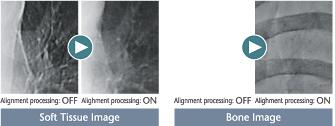 [photo] Soft tissue X-ray image and bone X-ray image