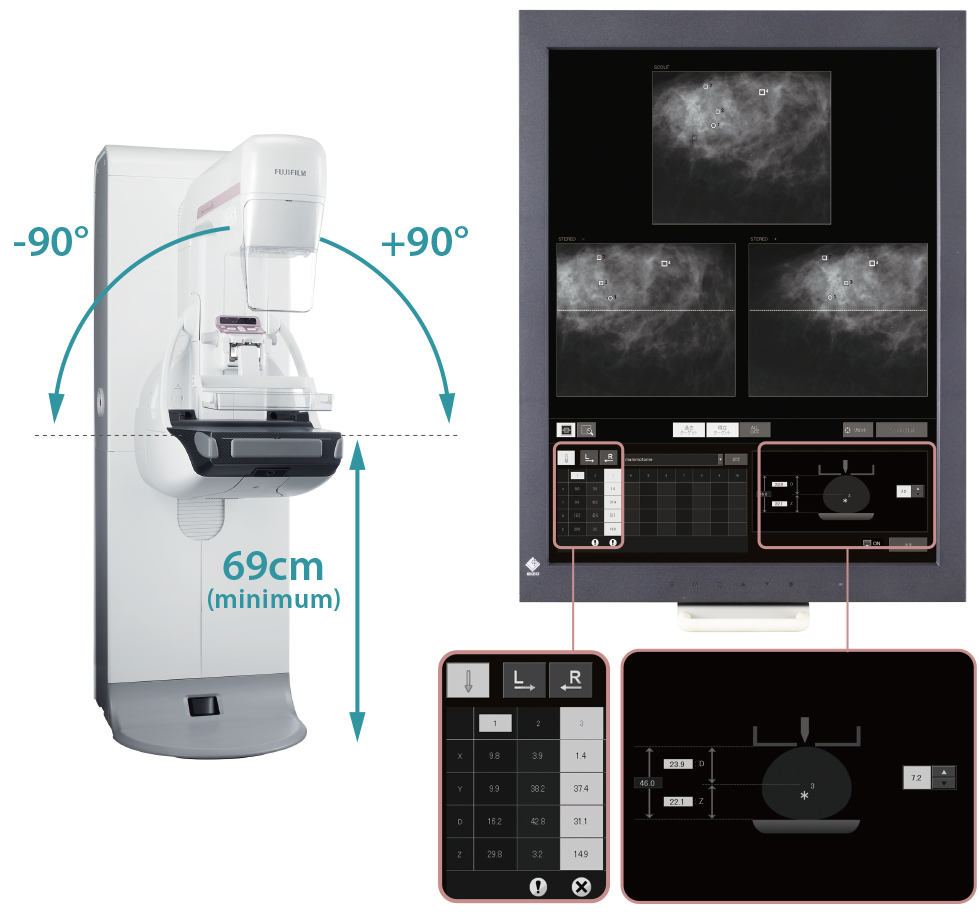 [photo] Front view of Biopsy Positioner - 50μm image solution and sample X-rays