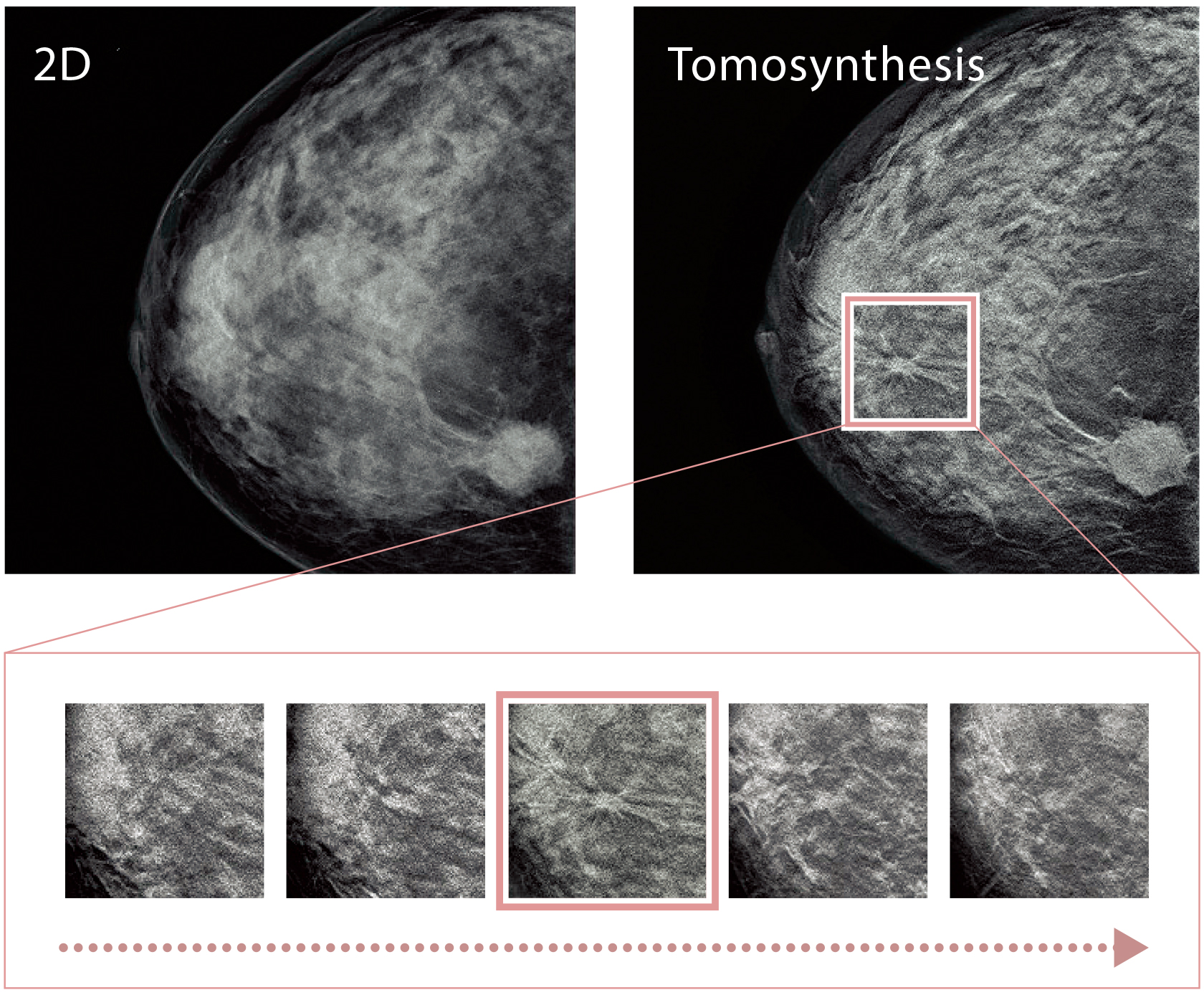 [image] Side by side of a 2d and Tomosynthesis X-rays with a pink bordered focus on the second image and zoomed in thumbnails