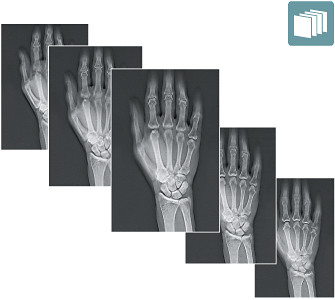 [photo] Series of x-ray images of bones in a hand