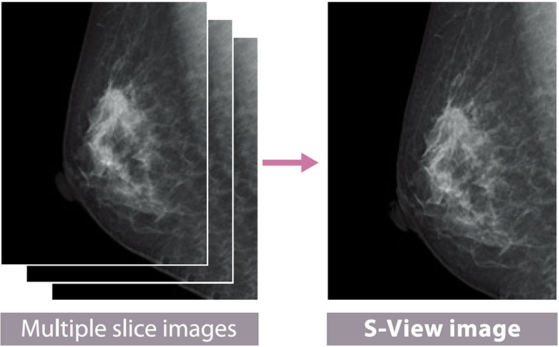 [photo] Multiple slice images of breast tissue combine into S-view image of tissue