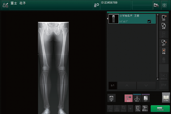 Image of an X-ray of human legs in an image processing application