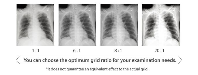 Grid ratio image