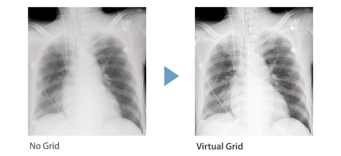grid comparison image