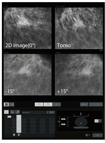 [photo] Tomosynthesis Biopsy in realtime simulation with sample 2D image and Tomo X-rays results
