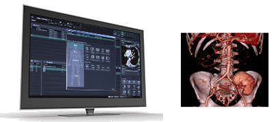 [image] Image software on computer screen and 3D modal of spine and hips