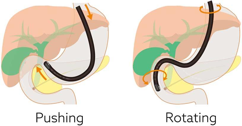 [image] Insertion tube of duodenoscope pushing through stomach and rotating