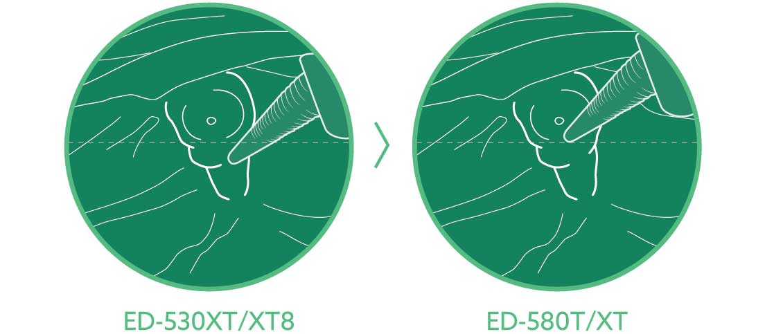 [image] ED-530XT/XT8 and ED-580T/XT angles of forceps elevator in stomach