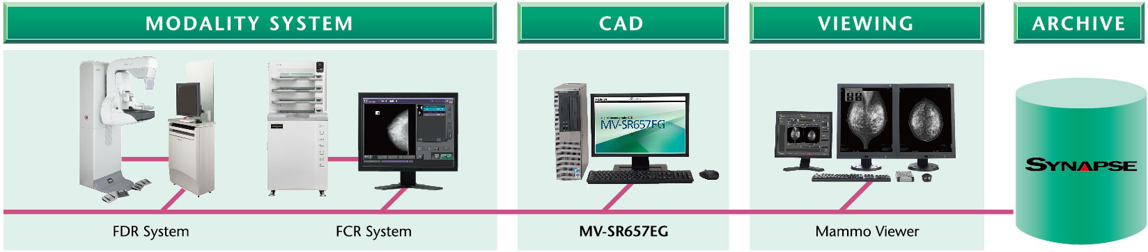 [image] Example of system configuration with modality system (FDR or FCR), CAD, Mammo Viewer, and Synapse Archive connected to each other