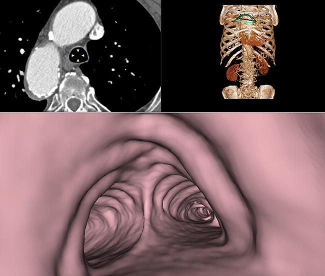 [imagen] Modelo 3D de cavidad torácica y endoscopia virtual