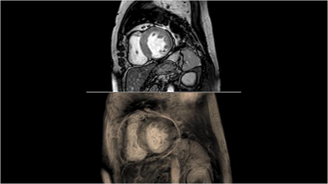 [imagen] Vista de TC/RM del cuerpo humano y los tejidos internos