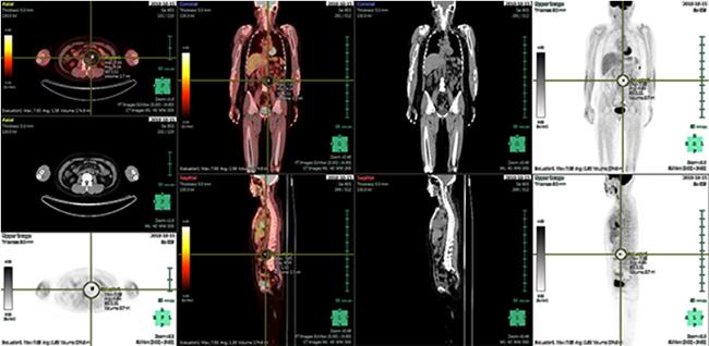 [imagen] Imágenes por TC y escaneo TEP rojas y blancas del cuerpo humano