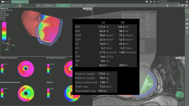 [imagen] Análisis de la función cardíaca de imágenes de RM del corazón