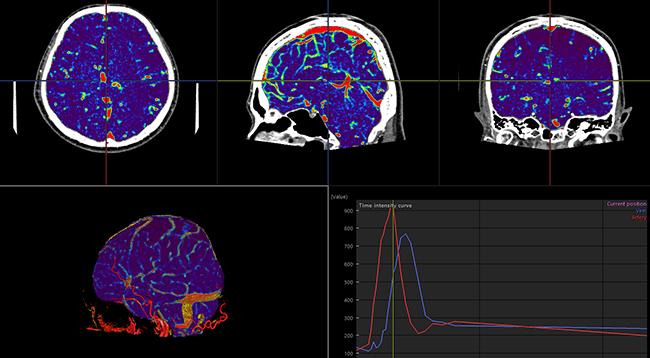 [imagen] Escaneo por TC de perfusión 4D de color púrpura y azul del cerebro y del flujo sanguíneo