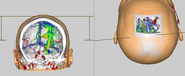 [imagen] Cabeza calva y piel en 3D con radiografía, imagen transparente de arterias y vasos dentro del cráneo