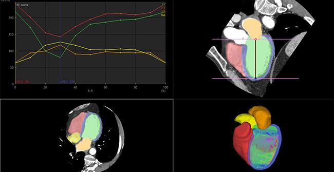 [imagen] Imágenes de TC 3D y 2D de un corazón